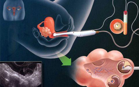 怀孕了有哪些表现 |试管婴儿受孕