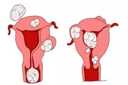 移植前做宫腔灌注有何利弊?